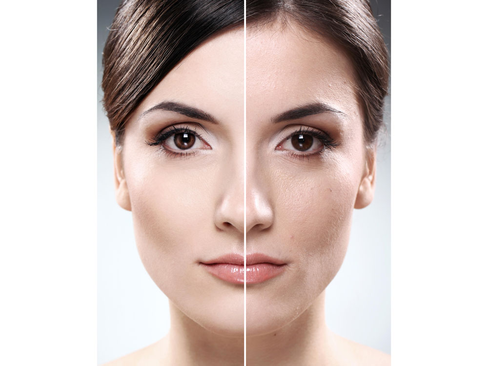 Face of women before and with dry eyes after LASIK surgery