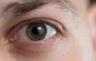 Single eye closeup PRK recovery