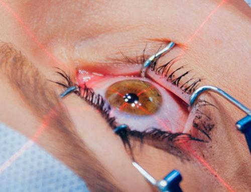 10 Things to Know Pre-LASIK Surgery